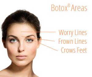 botox-areas